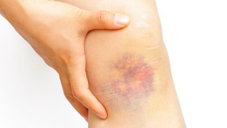 Болит колено после операции на варикоз