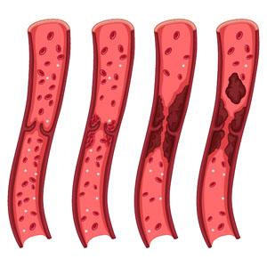 Тромбоз глубоких вен нижних конечностей: симптомы, лечение