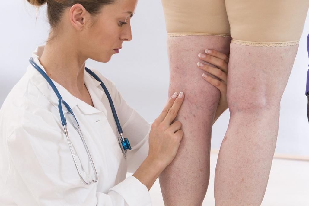 Флебосклерозирование вен нижних конечностей