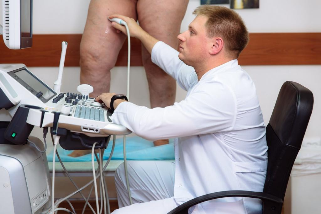 отеки ног диагностика