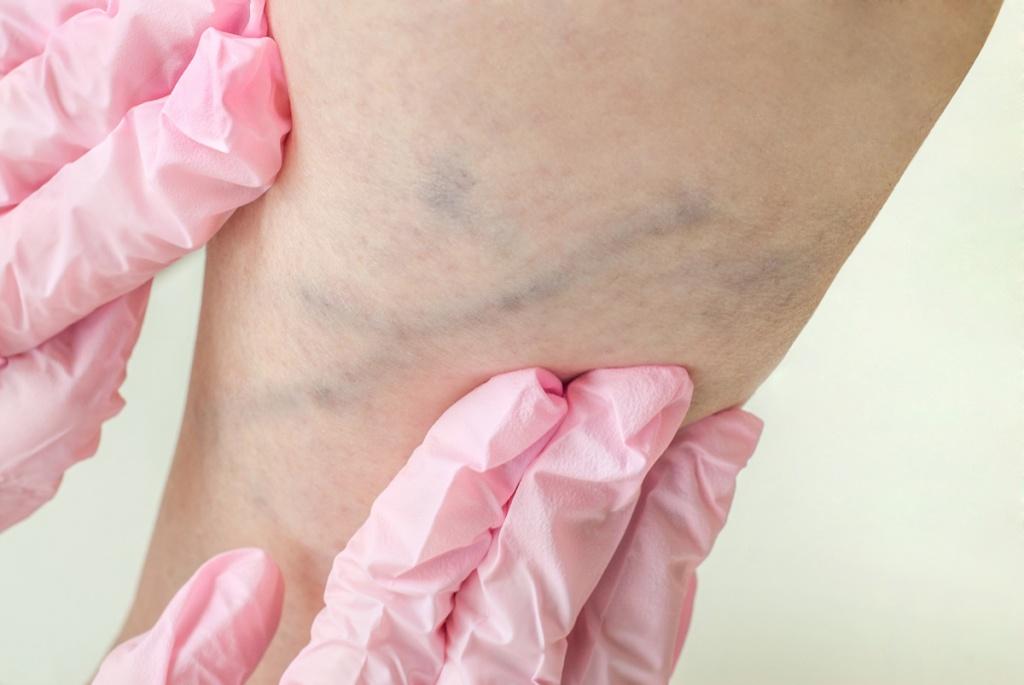лечение тромбоза