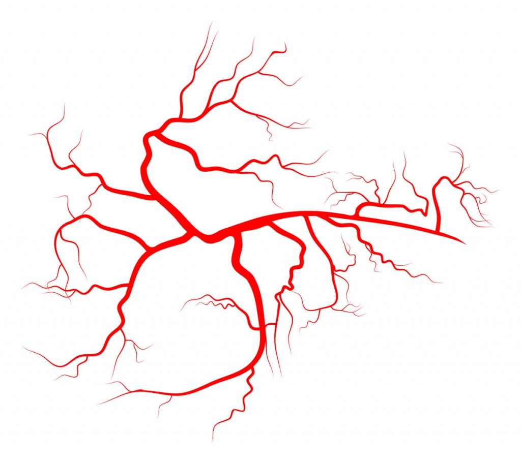 Склеротерапия вен нижних конечностей: что это такое, чем опасна, противопоказания, осложнения и что делать после?