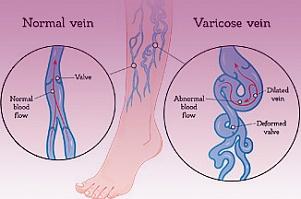 Что такое варикоз и почему расширяются вены