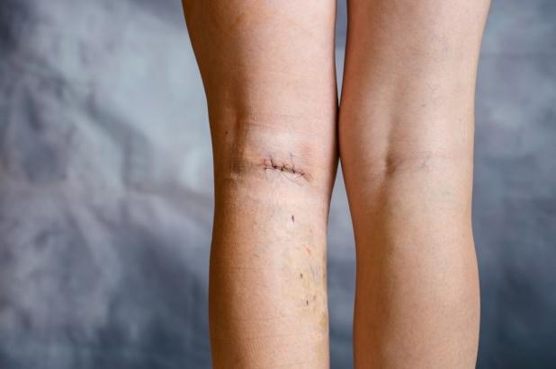 флебэктомия вен ног