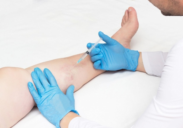 эхосклеротерапия