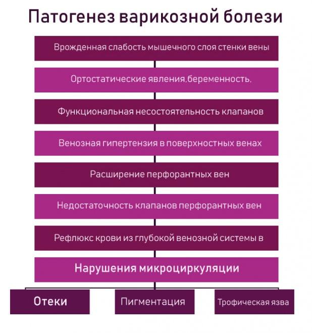 Патогенез варикозной болезни